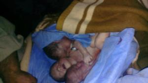 5 maggio 2013 edleb dir asharqi Nahed Alkans i suoi gemelli embrioni di 7 mesi e sua sorella