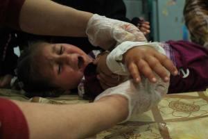 bambino ferito 4