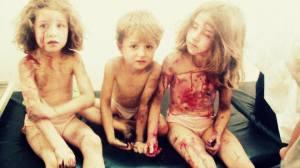 23 luglio 2013 Al Raqqa Tabaqa ospedale da campo, tre orfani