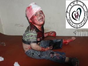 Aleppo, bimbo ferito