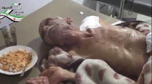 Al hajar al aswad Damasco 31 luglio 2013