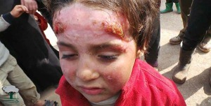 Leishmaniosi Aleppo